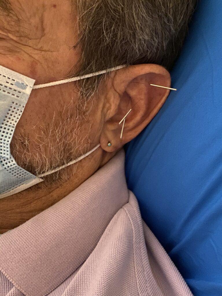 ear needles acudetox